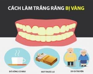 Nguyên nhân gây nên tình trạng răng bị vàng