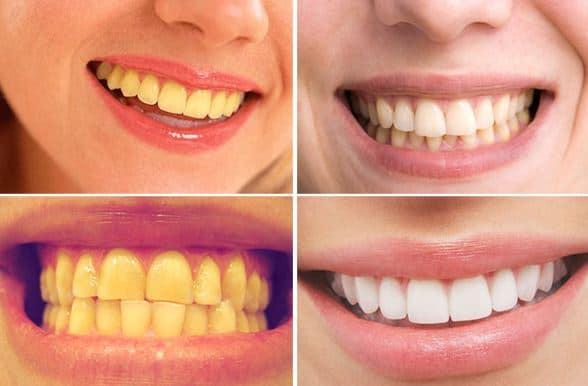 Răng trắng sáng hơn nhờ phương pháp tẩy trắng răng