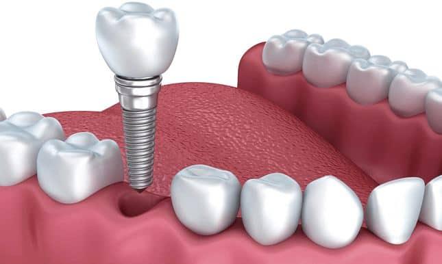 Thời điểm thích hợp cấy ghép Implant
