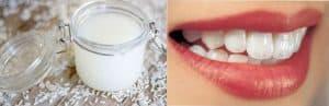 Làm trắng răng bằng nước gạo