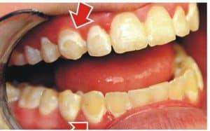 Dấu hiệu men răng bị hư tổn, cần điều trị ngay