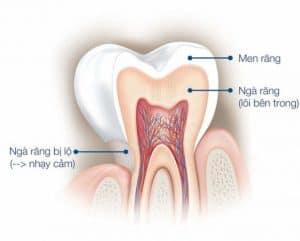 Cấu trúc răng khi bị tổn thương