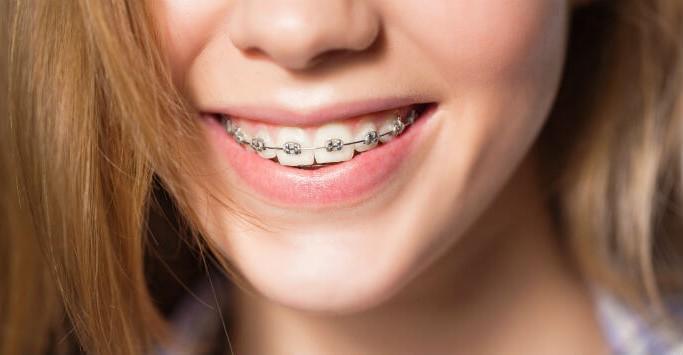 Chỉnh nha niềng răng tại nha khoa Yteeth