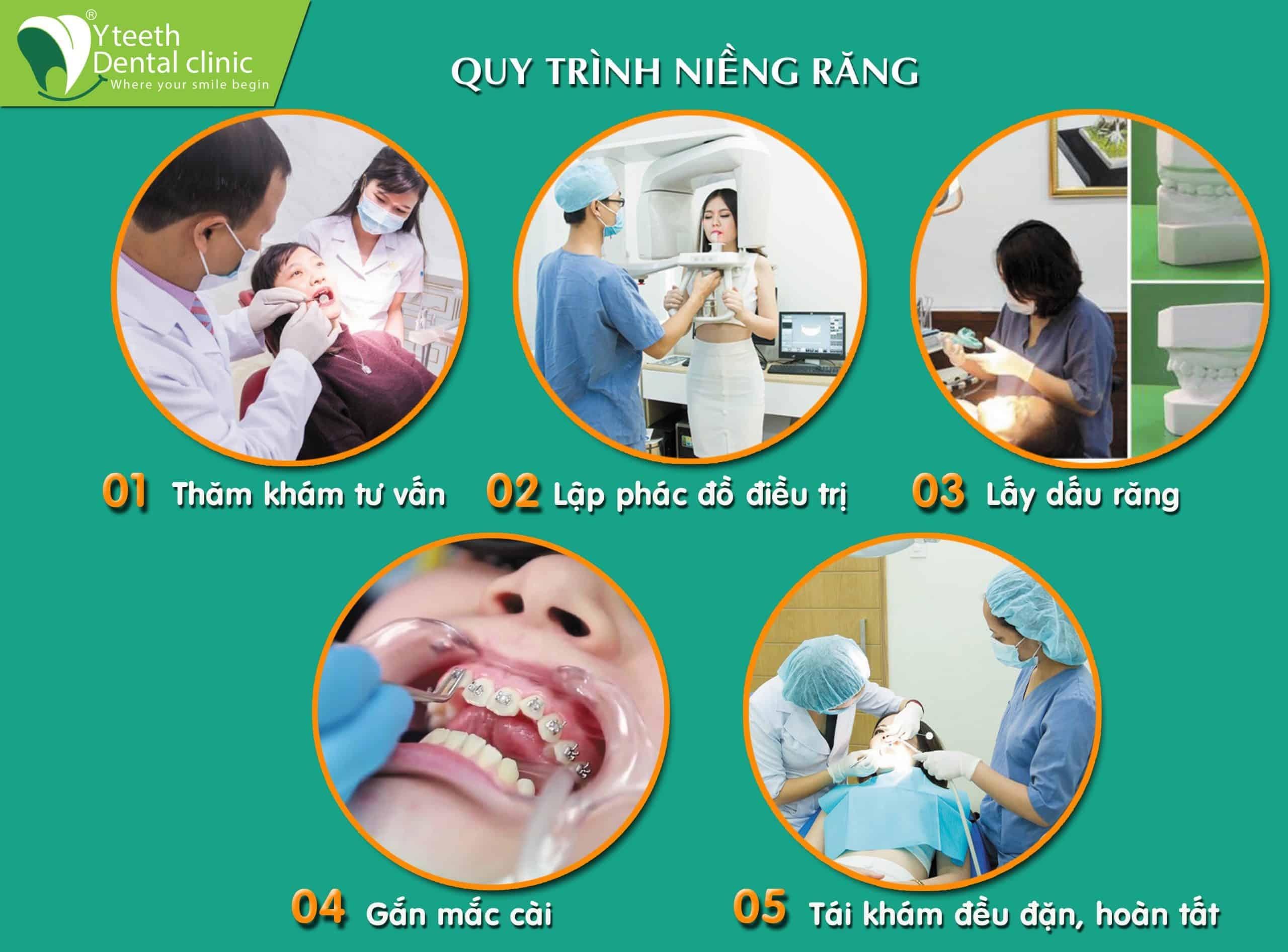 Quy trình Niềng răng tại nha khoa Yteeth