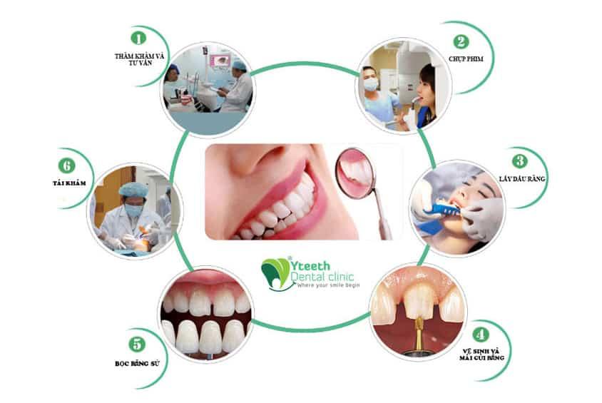 Quy trình bọc Răng sứ tại Nha khoa Yteeth