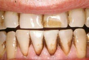 Răng bị bám stain