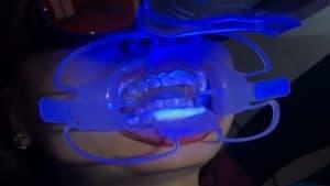 Tẩy trắng răng tại nha khoa là phương pháp hiệu quả nhất