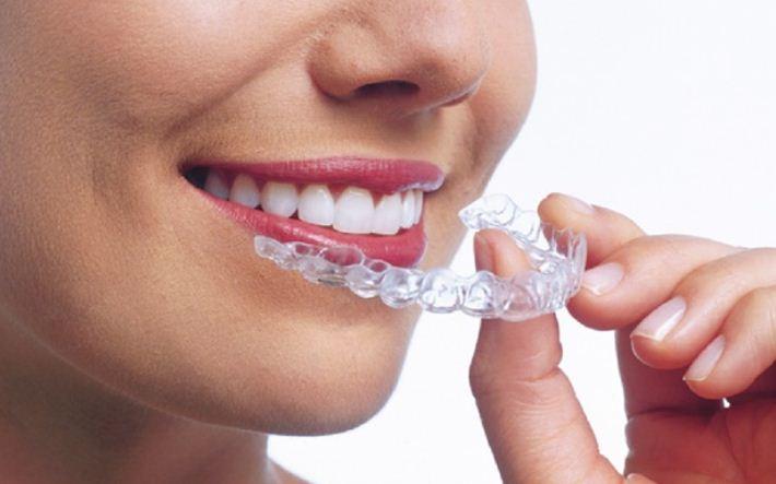 Niềng răng không mắc cài, tháo lắp dễ dàng