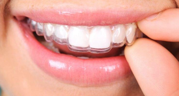 Niềng răng không mắc cài tăng hiệu quả thẩm mỹ