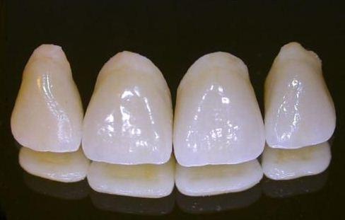 ăng sứ có lớp sườn kim loại( răng sứ titan và kim loại)