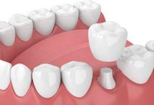 Bọc răng sứ cho hàm răng đẹp, chức năng ăn nhai tốt