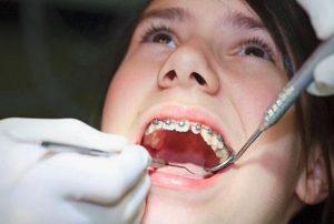 Niềng răng mắc cài kim loại ở hà đông