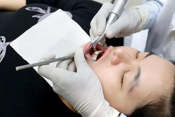 Đánh bóng răng có tốt không?