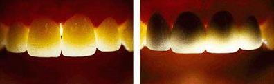 Hình ảnh 2 loại răng sứ trước ánh sáng đèn