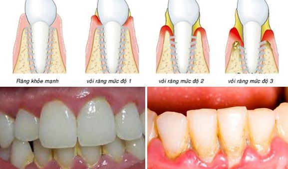 Răng bị ê buốt khi đi lấy cao răng, đánh bóng răng