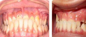 Ảnh hưởng của răng mọc lệch