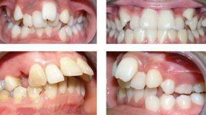 Tại sao răng mọc lệch?