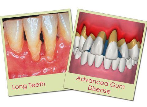 Cách xử lý khi răng bọc sứ bị lung lay