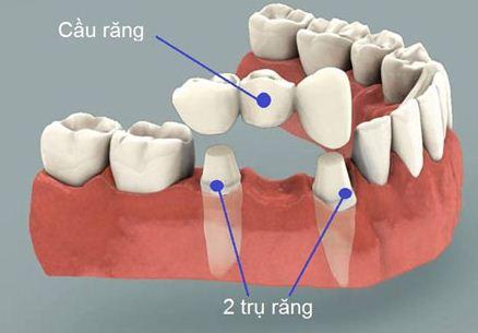 Răng bọc sứ bị lung lay do nhiều nguyên nhân