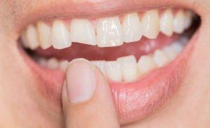Răng sứ bị mẻ vỡ lớn