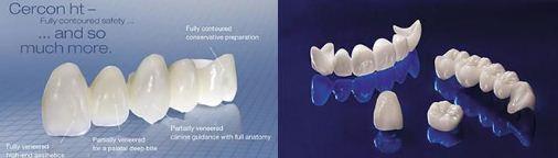 Răng sứ Cercon( răng sứ có sườn bằng sứ)