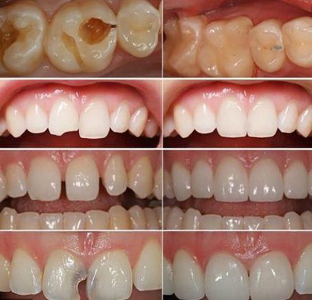 Nhiều dịch vụ về răng được thực hiện tại Nha khoa