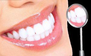 Sở hữu hàm răng sáng nhờ tẩy trắng răng