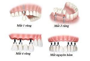 Trồng răng Implant được nhiều người lựa chọn