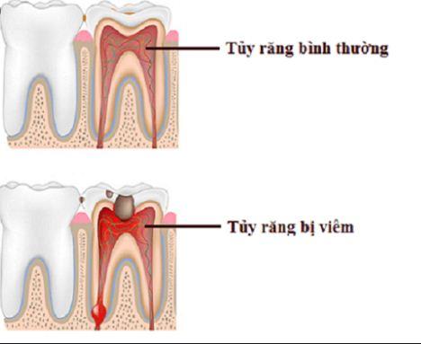 Răng bị viêm tủy và răng bình thường